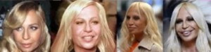 Donatella_Versace_facelifts